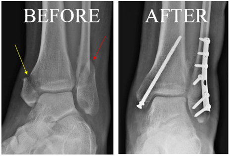 Broken ankle before and after surgery